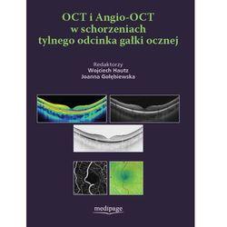 OCT i Angio-OCT w schorzeniach tylnego odcinka gałki ocznej (opr. twarda)