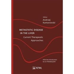 Metastatic disease in the liver - current therapeutic approaches - andrzej komorowski